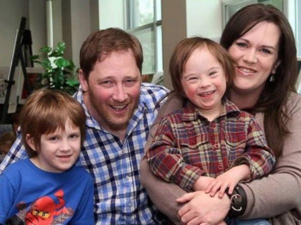 dad defends son with down syndrome