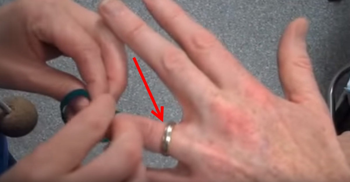 ring removal trick