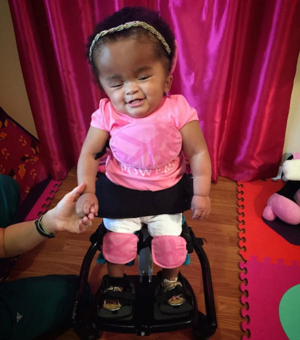 woman adopts baby with brain condition