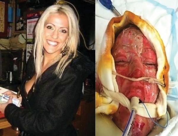 woman burn victim