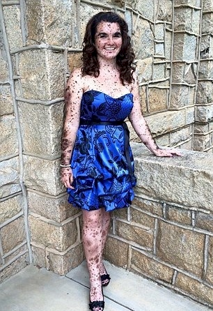 woman giant birthmarks