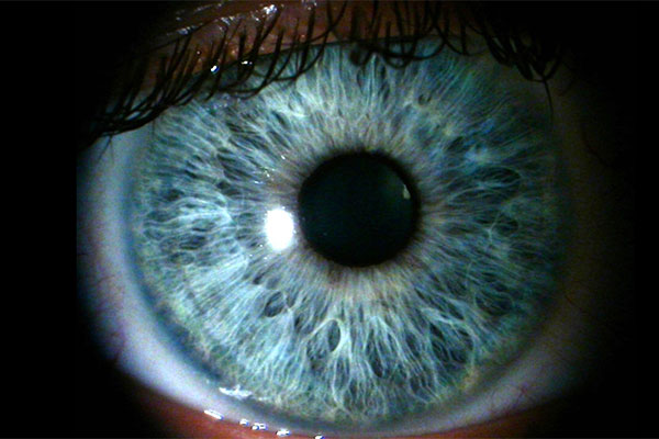 the origin of blue eyes 9