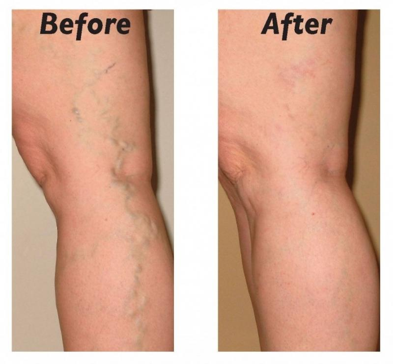 Natural Treatment For Varicose Veins In Pregnancy