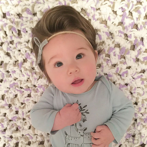 babies born with full hair6
