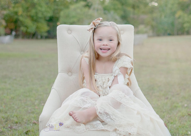 true beauty of down syndrome children 1