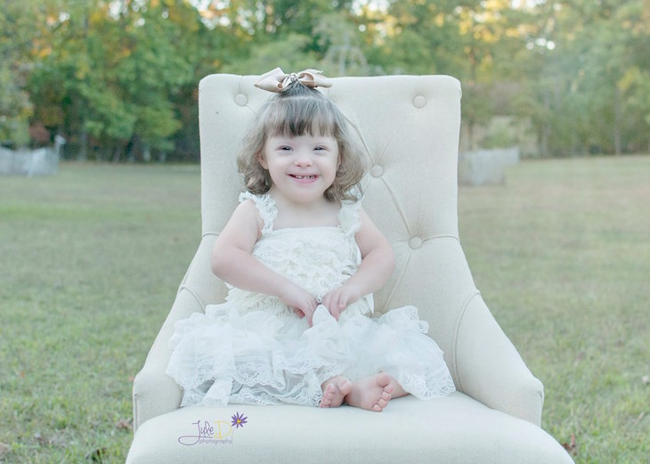 true beauty of down syndrome children 3