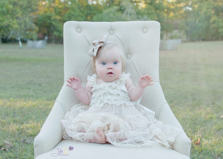 true beauty of down syndrome children 6