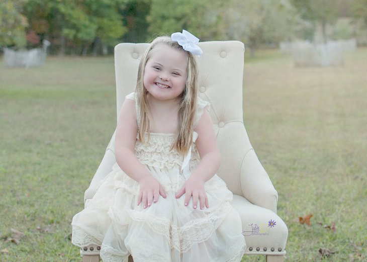 true beauty of down syndrome children 8