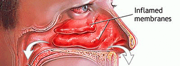 clear sinuses quickly