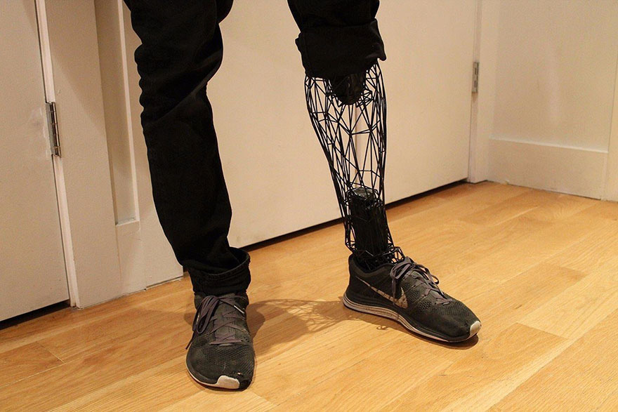 prosthetics-leg1