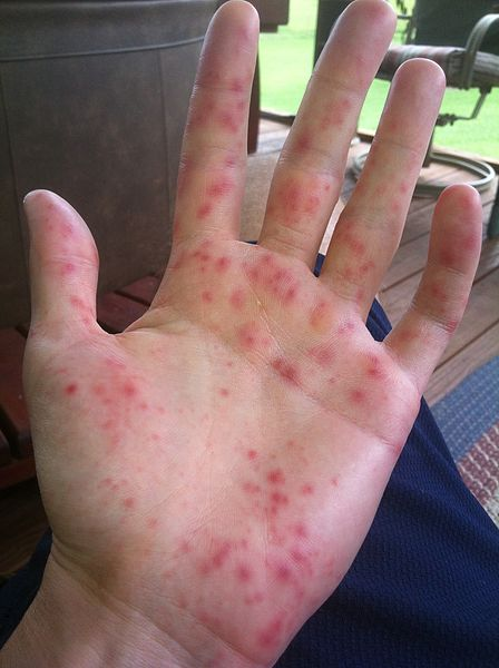 hand food and mouth disease