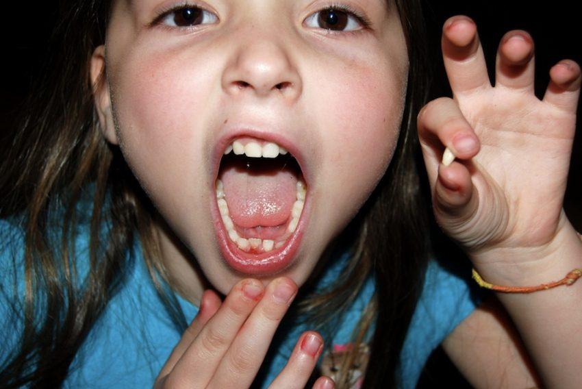 keeping baby teeth