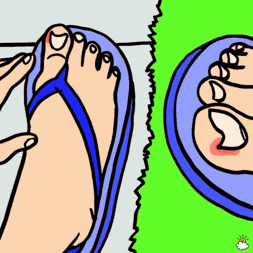 ingrown toenails treatments
