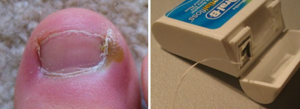 ingrown toenails treatments