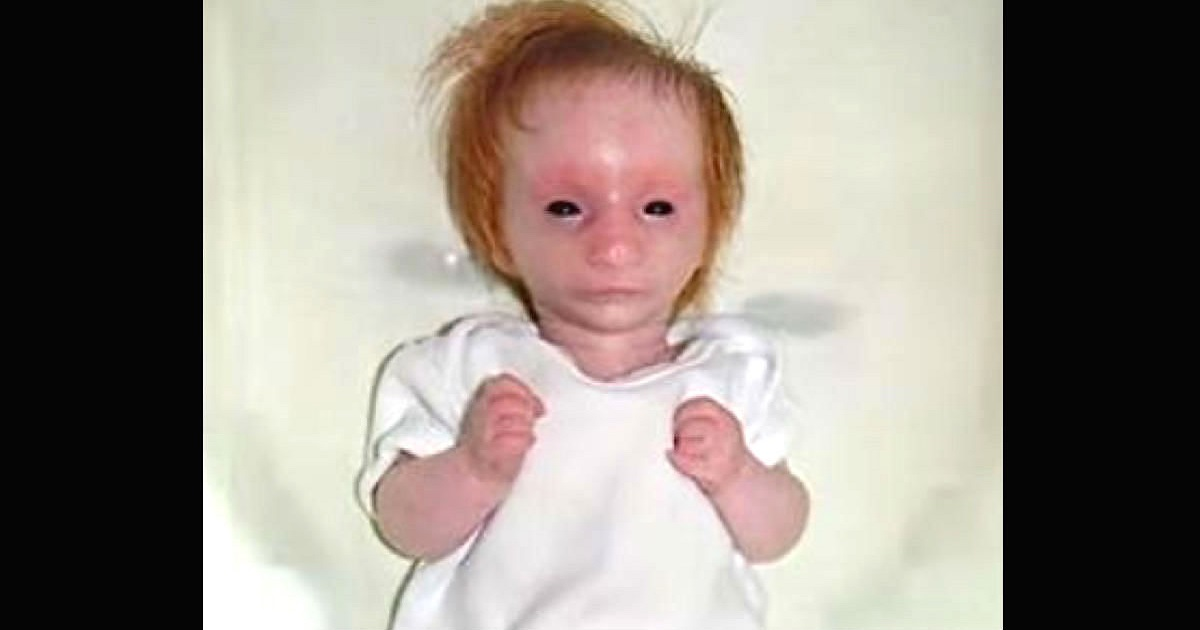 Mom Delivers Doll Like Baby With Black Eyes And 5 Years