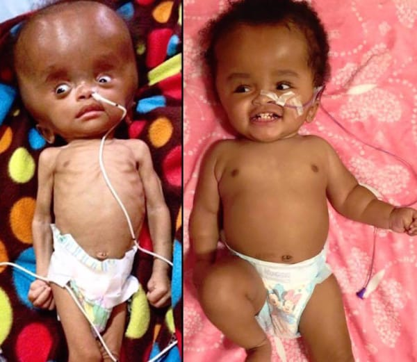 miracle baby nika