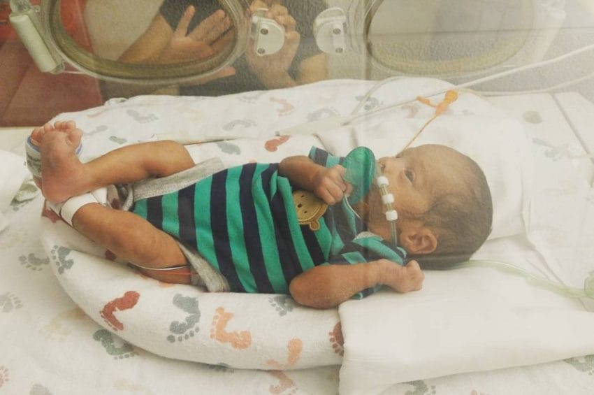 mom delivers amniotic sac baby