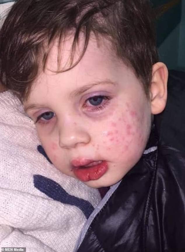 baby herpes virus